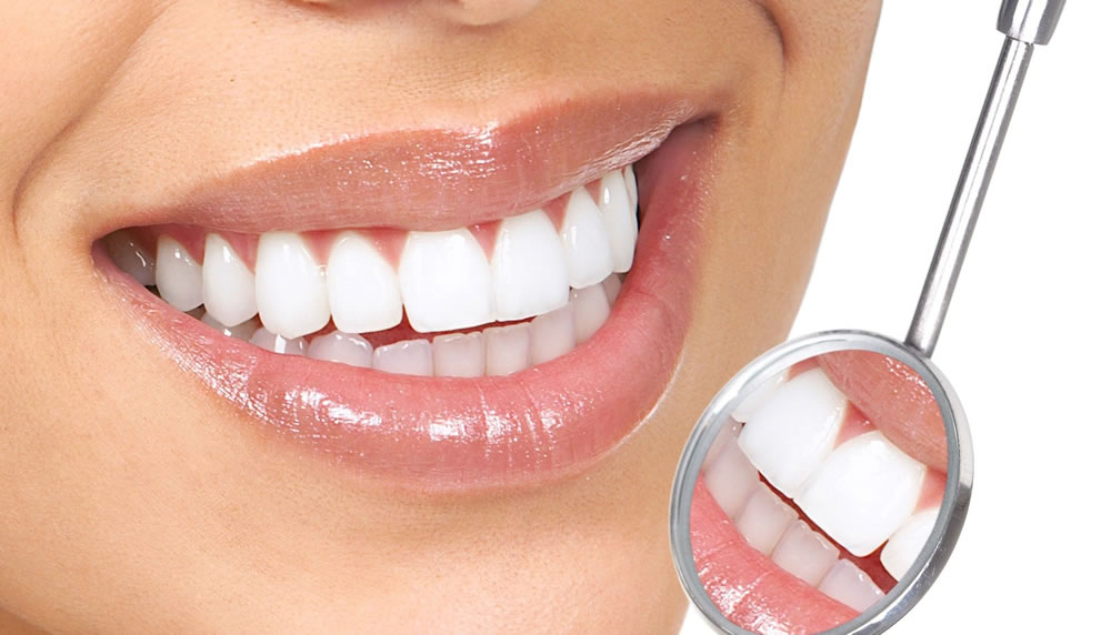 lentes-contato-dental